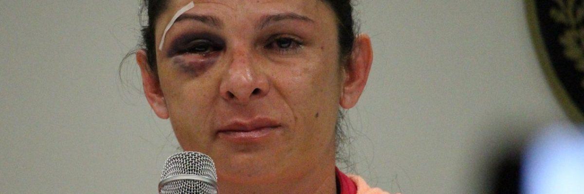#TodosSomosAna: La agresión contra Ana Gabriela Guevara nos duele