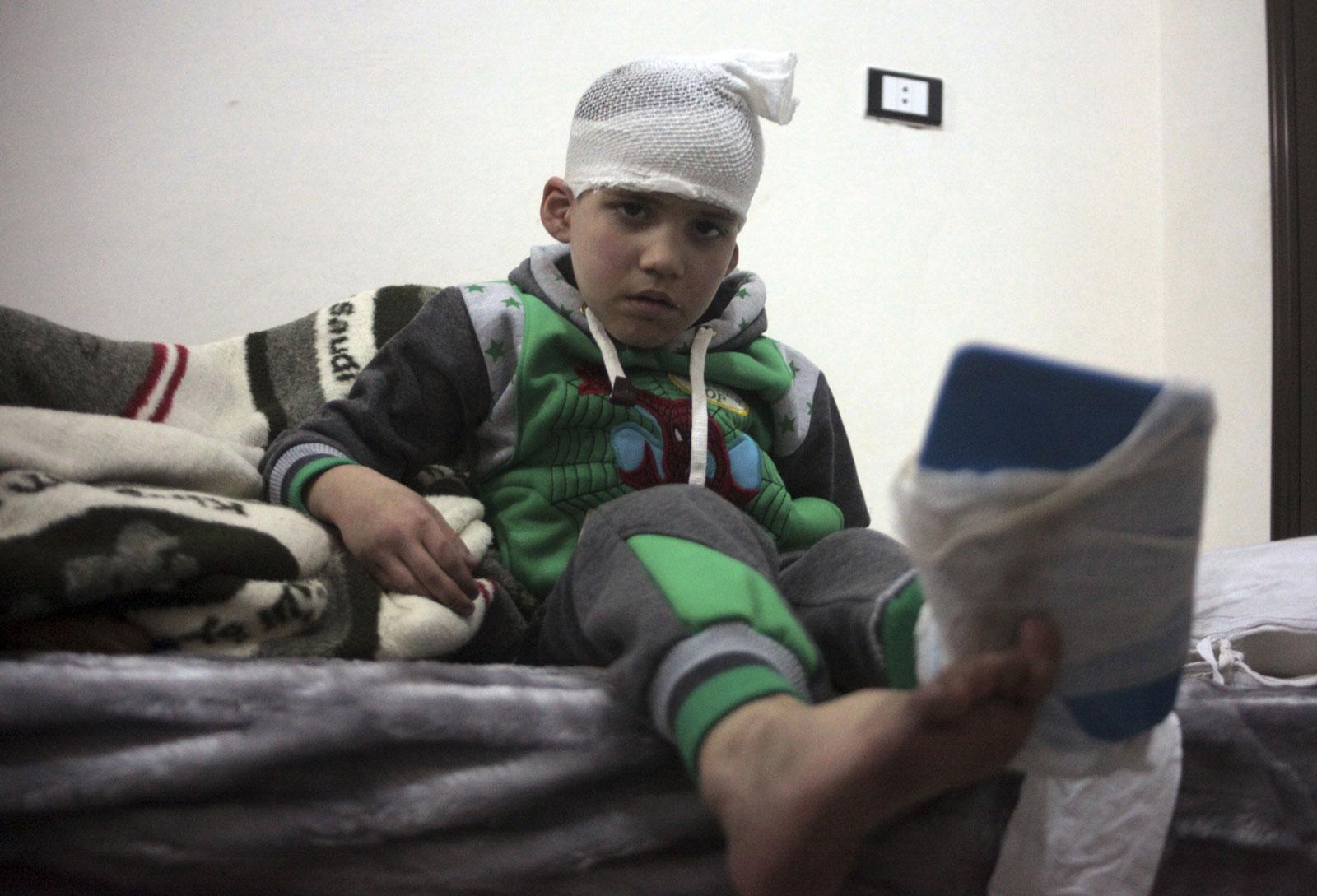 Un niño herido evacuado de Aleppo, Siria. (AP)